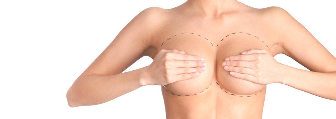 15-mamoplastia